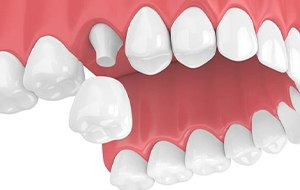 Model of dental implant restoration