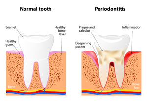 Gum Graphic of healthy tooth vs periodontitis