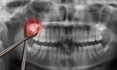 Tooth Extraction X-ray